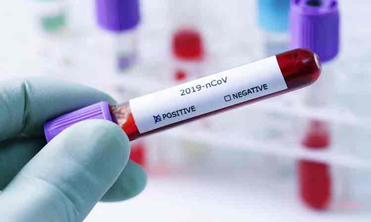 ULTIMA ORA: Coronavirus Romania, 8 aprilie 2020. Bilantul oficial
