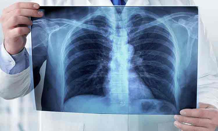 Cum-ar-putea-vaccinul-anti-tuberculoza-sa-salveze-omenirea