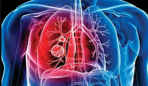 de ce pacienții cu tuberculoză își pierd greutatea