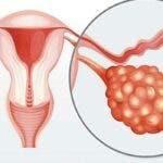 Ce este sindromul ovarelor polichistice. Semnele ce nu trebuie ignorate