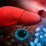 Ficatul gras non-alcoolic expune pacientul la boli provocate de coronavirus