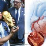 Ce este atacul de cord, boala care l-a rapus pe Diego Maradona. Care sunt simptomele ce nu trebuie ignorate