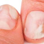 Ce ajuta cu adevarat la infectiile fungice ale unghiilor