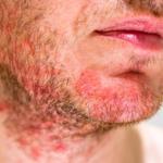Dermatita seboreica – ce trebuie sa stim despre aceasta afectiune