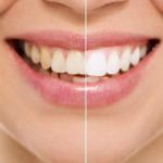 3 modalitati simple de a va albi in mod natural dintii acasa