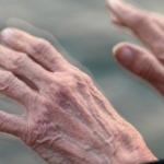 Simptomele timpurii ale bolii Parkinson