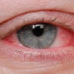 Suferiti de ochi uscati si iritati – uite ce puteti face in astfel de cazuri