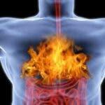 Alimente care cauzeaza arsuri la stomac